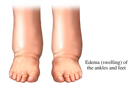 Swelling - Academy Foot and Ankle